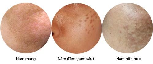 Các loại nám da mặt thường gặp