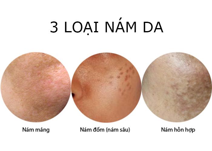 Các loại nám da, dấu hiệu phân biệt các loại nám da mặt