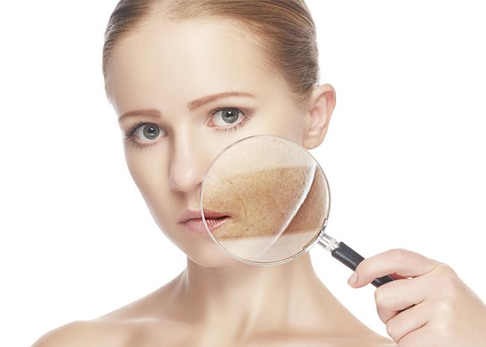 Nám da mặt ở phụ nữ