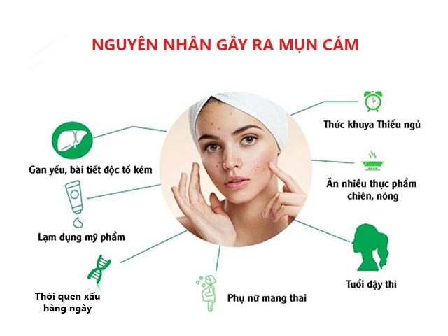Nguyên nhân và cách trị mụn đầu đen ở mũi tận gốc tại nhà