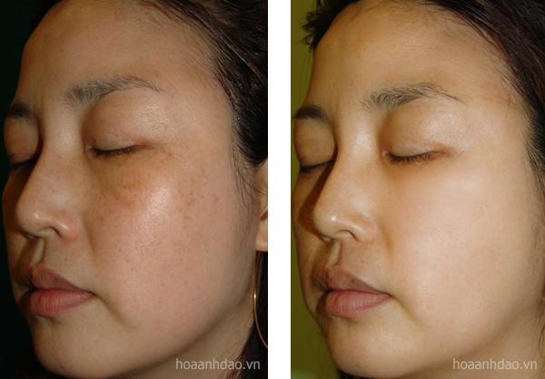 Trước và sau 4 tuần sử dụng Serum giúp giảm nám Nanoluxe Dark Spot Remover by Reluma