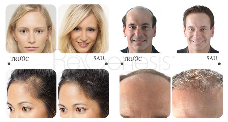 thuoc-serum-moc-toc-Revitalash-ReGenesis-Hair-Volume-Enhancer