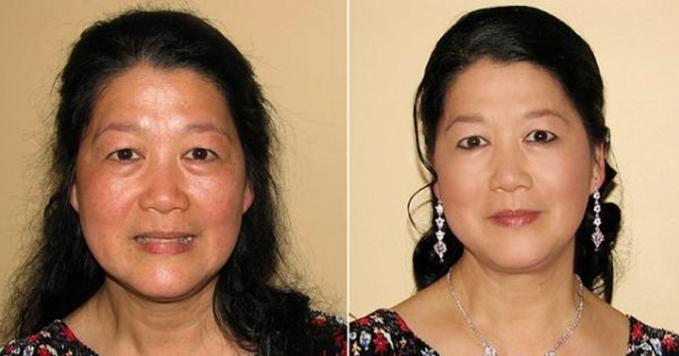 kem-duong-trang-da-chong-lao-hoa-sakura-crystal-clear-whitening-cream-anti-aging
