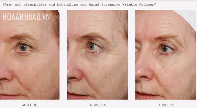 serum-xoa-nhan-Murad-Intensive-Wrinkle-Reducer