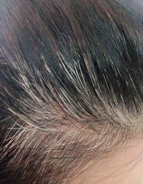 Bí quyết biến tóc bạc thành tóc đen từ thiên nhiên