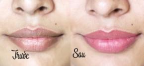 """Trị thâm môi chỉ trong 3 ngày nhờ """"mặt nạ"""" chanh kì diệu"""