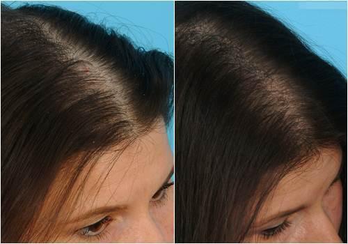 1 quả chanh – 2 công thức trị dứt điểm rụng tóc 100%