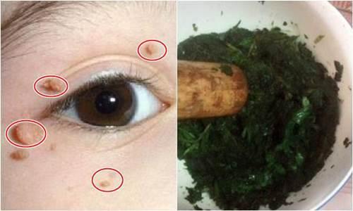 Bí quyết tẩy nốt ruồi hiệu quả sau 7 ngày chỉ với 1 tép tỏi và 1 nắm rau mùi