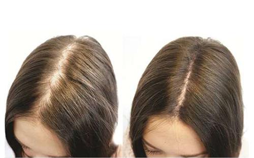 Bí quyết chữa hói đầu và rụng tóc kinh niên chỉ sau 7 ngày