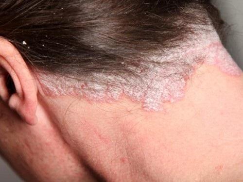 Kinh rợn việc lở loét da đầu, tóc bong tróc từng mảng vì sở thích đổi mốt nhuộm tóc liên tục