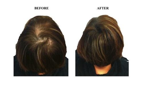 Rụng tóc kinh niên và gầu mãn tính sẽ hết ngay chỉ với 1 quả khế chua