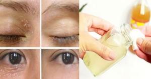 Đánh bay mụn thịt quanh mắt chỉ với 1 củ tỏi, không gây bỏng rát mà vô cùng hiệu quả