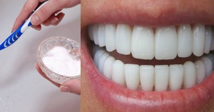 Răng trắng sáng hết ố vàng, cao răng bong thành mảng hơi thở lại thơm mát với chai oxy già