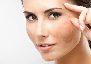 Bệnh nám da, tàn nhang trong mùa hè và cách điều trị an toàn