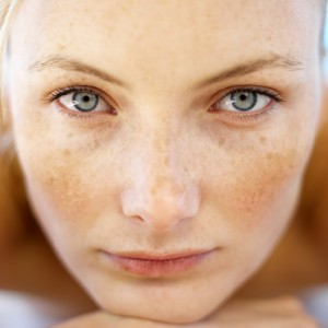 Phân biệt các loại nám da và hướng cải thiện nám ở mọi độ tuổi