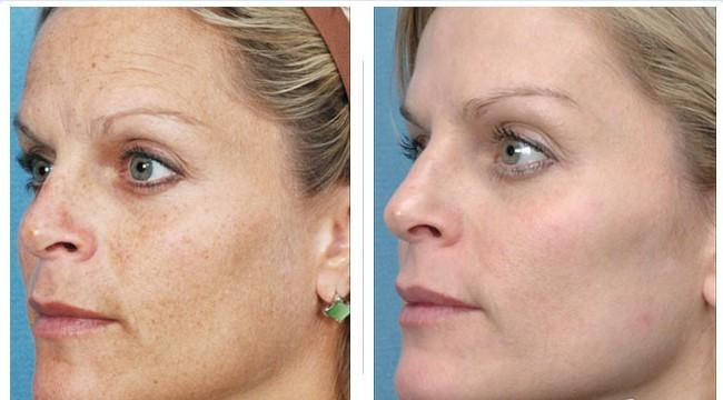 Đẩy lùi nám da, tàn nhang, cải thiện da lão hóa ở độ tuổi tiền mãn kinh
