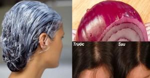 Ai bị rụng tóc nhiều, tóc mỏng thậm chí hói đầu thì nên thử áp dụng cách này
