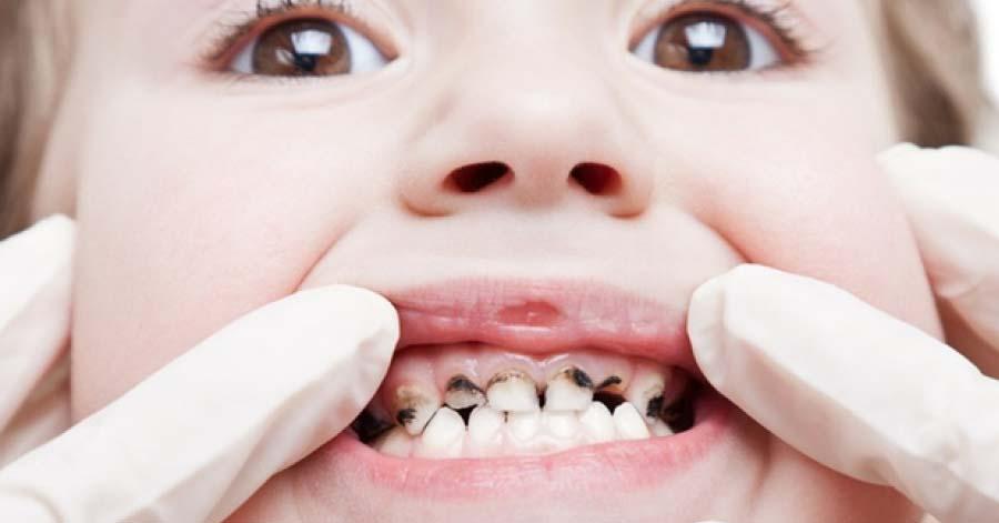Nước lá chanh đun đặc: Phương pháp trị sâu răng, viêm lợi thậm chí là hôi miệng vô cùng hiệu quả
