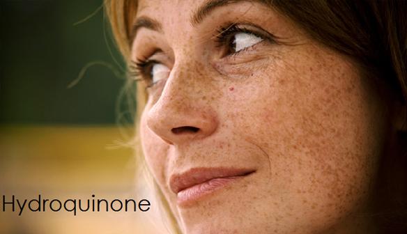 Hydroquinone –  Hiểu đúng, dùng đúng da trắng sáng, sạch nám