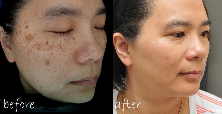 Để chữa dứt điểm nám da thì chi phí khoảng bao nhiêu?