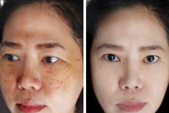 Ngăn ngừa nám cũ tái phát, duy trì làn da tươi trẻ rạng rỡ mỗi ngày