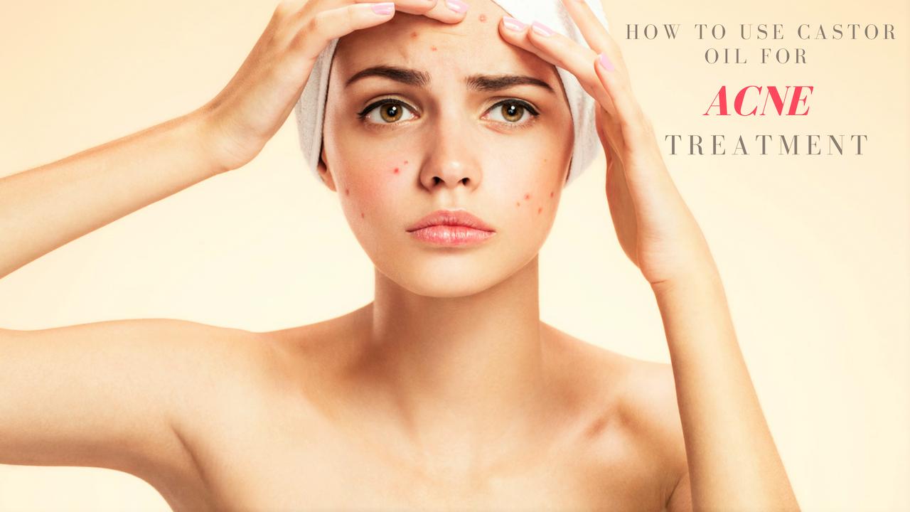 Dầu thầu dầu – Bí quyết dưỡng da, trị sẹo mụn tuyệt vời