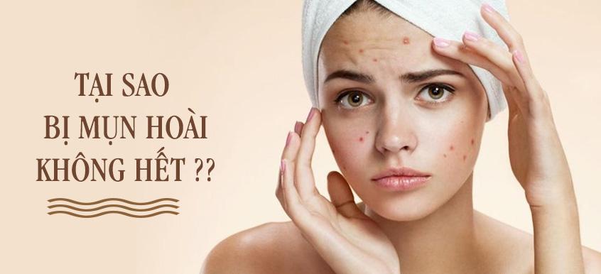 7 hoạt chất trị mụn hiệu quả cho từng loại da