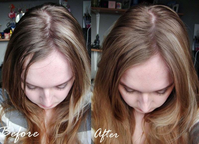 """3 Serum chuyên đặc trị rụng tóc và kích thích mọc tóc hiệu quả của Mỹ được """"săn lùng"""" nhiều nhất năm 2017"""