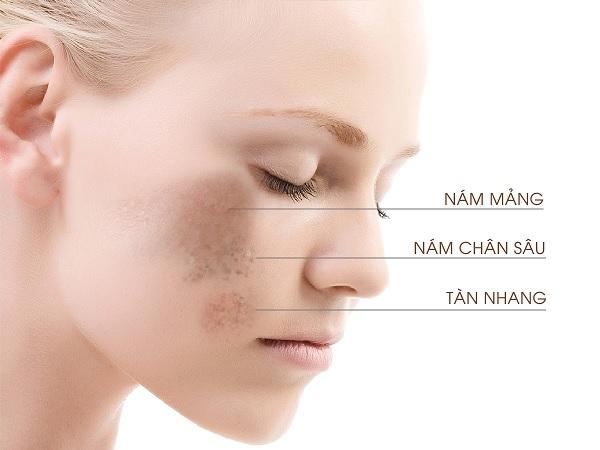 5 bước chăm sóc da bị nám tàn nhang chuẩn khoa học, an toàn và hiệu quả nhất
