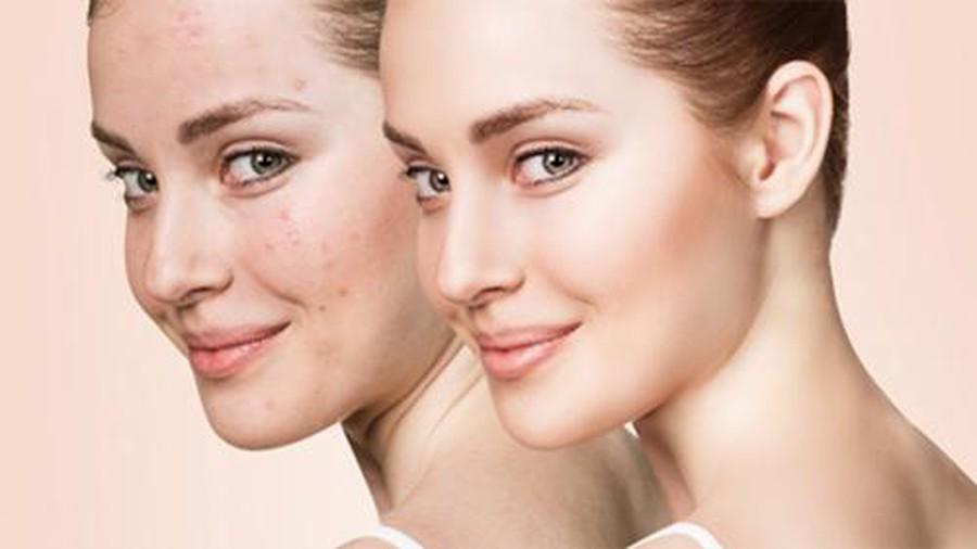 Gợi ý mặt nạ dưỡng da trị mụn ngày Tết cho từng loại da từ các nguyên liệu có sẵn trong căn bếp