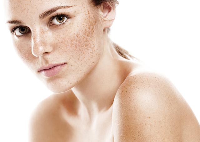 Quá trình hình thành tàn nhang và các loại tàn nhang xuất hiện trên da.