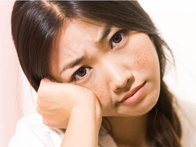 Nám da và những tác hại không mong muốn của nám da