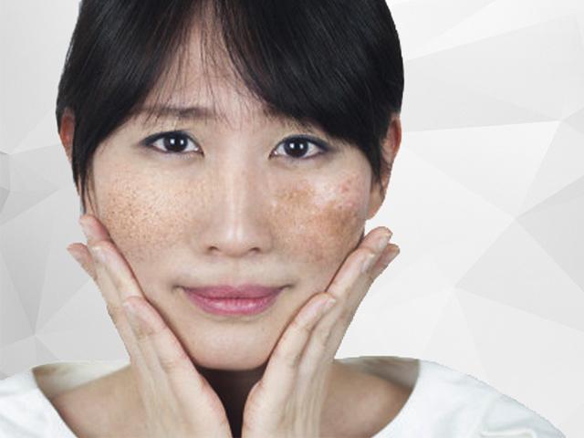 Hiểu rõ về nguyên nhân gây nám da để tìm cách điều trị hiệu quả