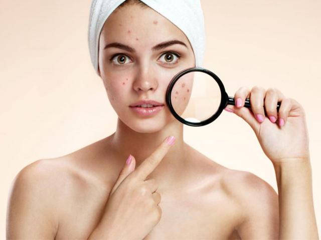 Tìm hiểu 9 nguyên nhân gây ra mụn và cách chữa trị mụn