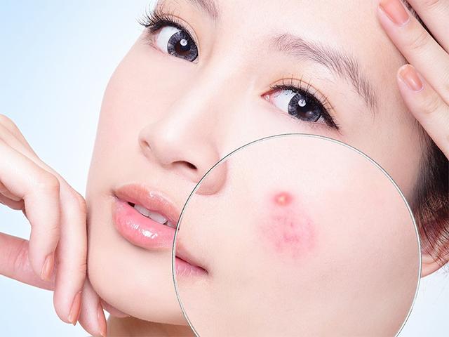 Mụn bọc là gì? 7 Nguyên  nhân gây ra mụn bọc trên da