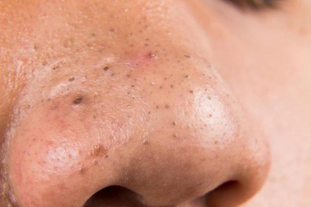 6 cách trị mụn đầu đen ở mũi cho nữ hiệu quả