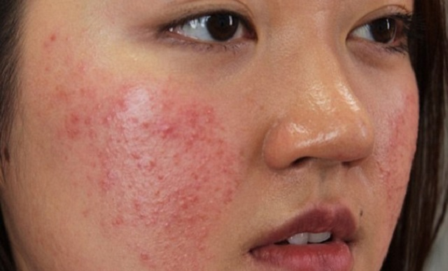 Điểm danh 6 loại kem trị mụn hiệu quả dành cho da dầu