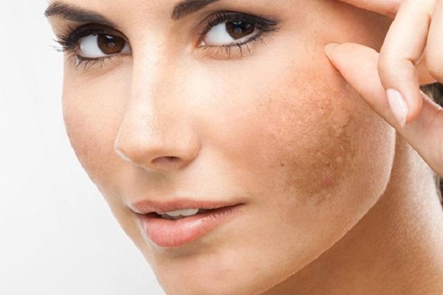 Cách trị nám da mặt bằng phương pháp thiên nhiên