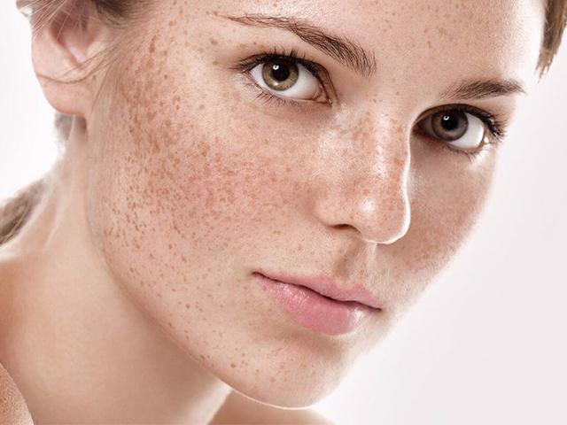 5 dấu hiệu nhận biết nám da thường gặp trên da mặt