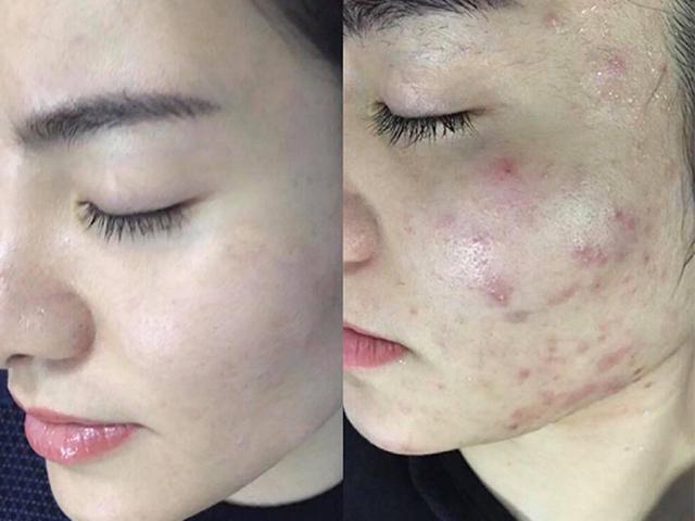 5 bước loại bỏ mụn viêm, mụn dị ứng trên da hiệu quả