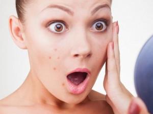 Mụn nang lông là gì? Nguyên nhân và giải pháp điều trị