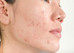 Sạch mụn, da hết nhờn khi dùng bộ sản phẩm trị mụn cao cấp Sakura
