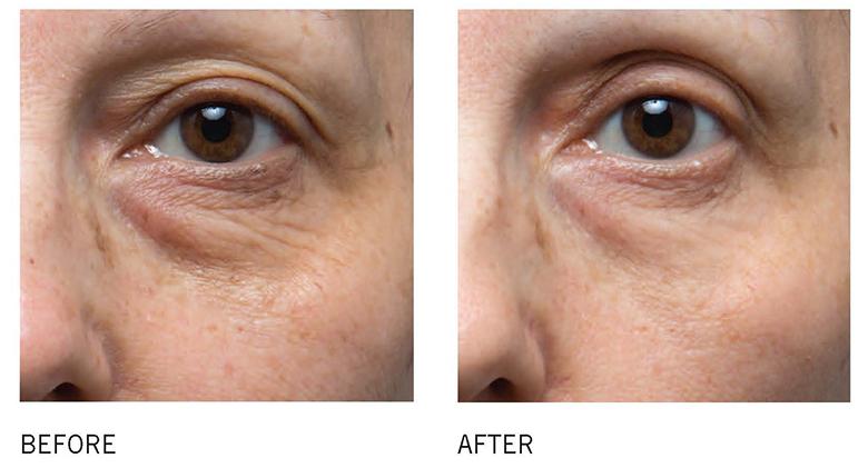 vitamin-c-tri-tham-quang-sang-da-bong-may-is-clinical-c-eye-serum-advance