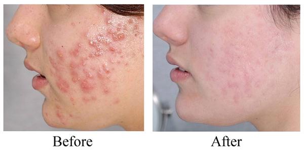 Kết quả hình ảnh cho is clinical pro heal serum