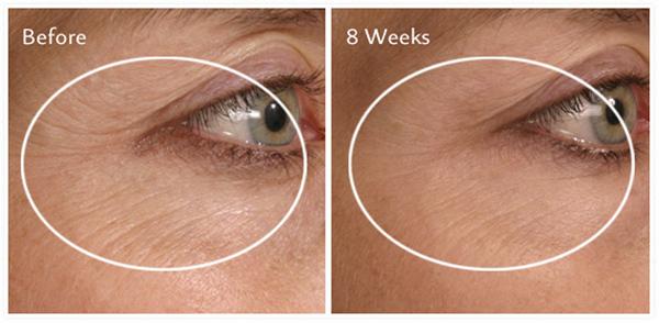 collagen-san-chac-da-mesoestetic-collagen-360-eye-contour