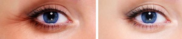 kem-duong-da-vung-mat-mesoestetic-radiance-dna-eye-contour