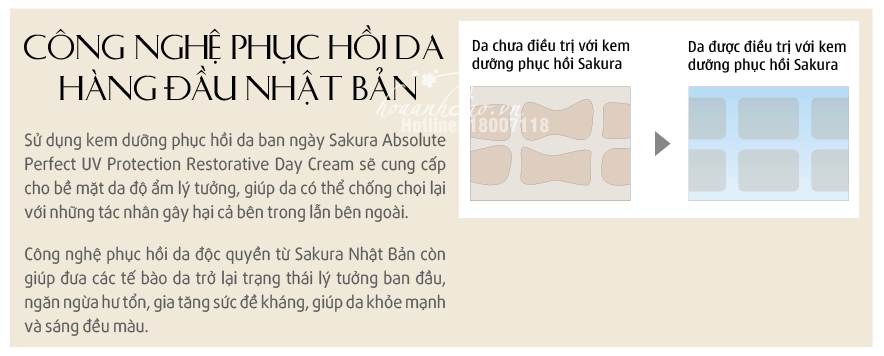 bo-kem-duong-chong-lao-hoa-phuc-hoi-da-sakura-hoaanhdaovn