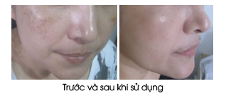 kem-tri-nam-duong-trang-da-ban-dem-sakura-spots-care-whitening-night-cream