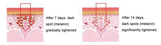 Tranexamic Acid đậm đặc có khả năng thấm sâu vào phá hủy hoàn toàn sự kết tụ hắc tố từ gốc, làm sáng nhanh vùng da sạm màu