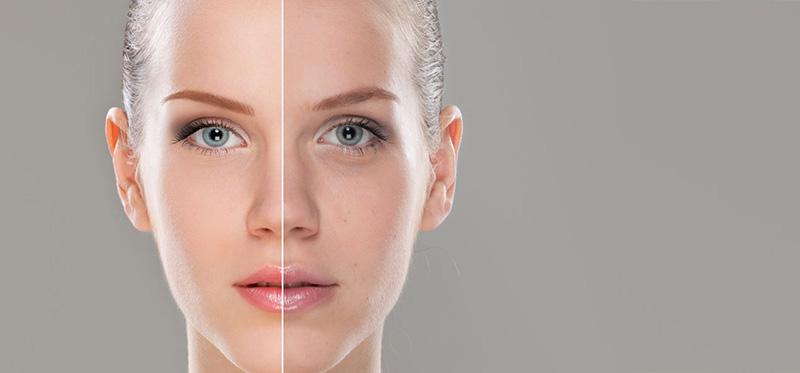 mất cân bằng ph là nguyên nhân gây nên nhiều vấn đề da